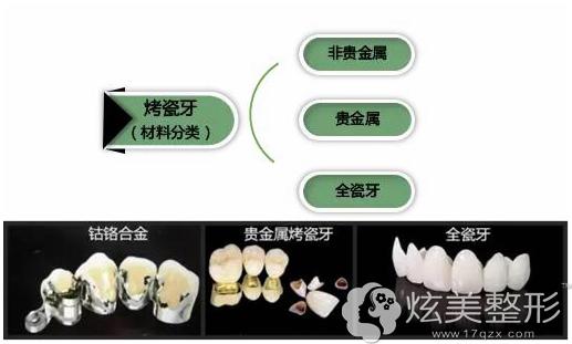 烤瓷牙的主要分类,全瓷牙是其中一种