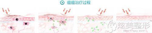徐州三院激光祛痘原理