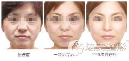 十一想做面部除皱来看对比案例