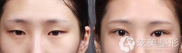 十一国庆想做双眼皮+开眼角先来看前后对比案例