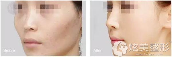 面部脂肪填充案例十一变美有优惠吗