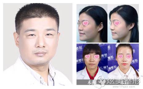专注隆鼻的武汉五洲美莱整形专家刘骏