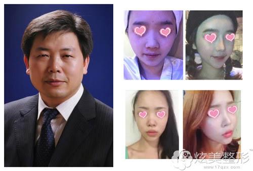武汉同济医院整形美容科专家邓裴