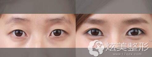 眼部综合整形前后对比案例