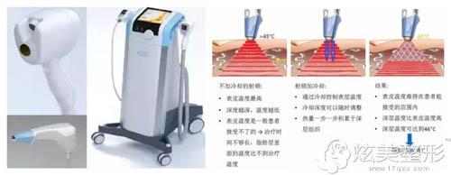 沈阳名流整形BTL超级射频溶脂紧肤原理