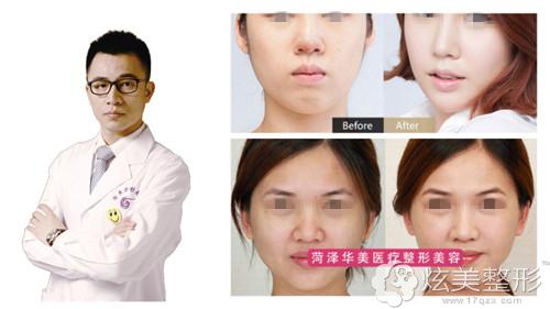 擅长鼻修复的菏泽华美整形专家白立明