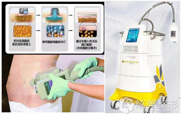 吸脂效果较好的酷塑冷冻溶脂新技术仪器及原理