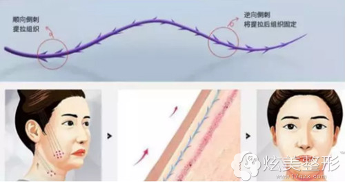 京美整形3D打印线雕逆龄术原理