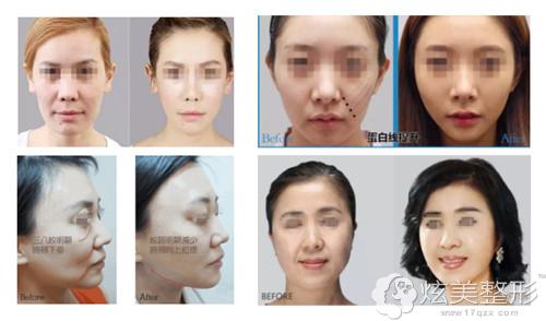 沧州京美面部线雕提拉真人案例