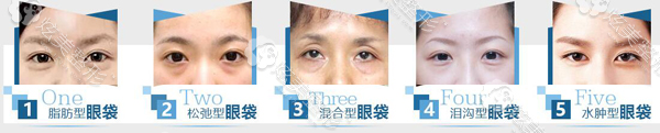常见的眼袋五种类型