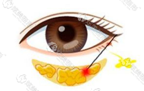 脂肪形成眼袋过程
