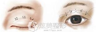 北京叶子复合植入式双眼皮