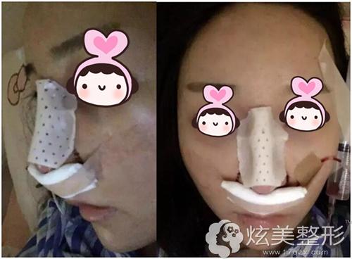 射极峰膨体隆鼻术后即刻效果