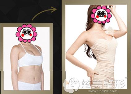 太原丽都整形真人案例吸脂和自体脂肪隆胸