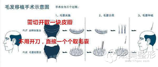 毛发种植手术原理