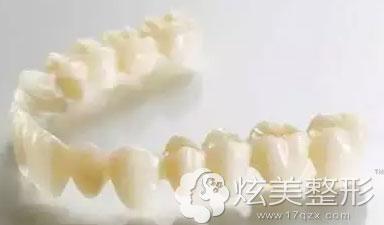 全瓷牙材料
