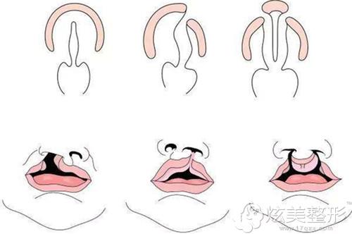 常见的唇腭裂形态
