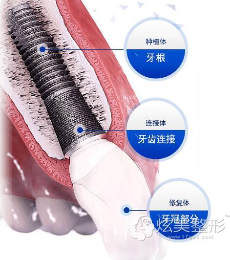 种植牙主要包括三部分