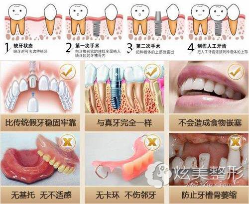 种植牙过程以及优势