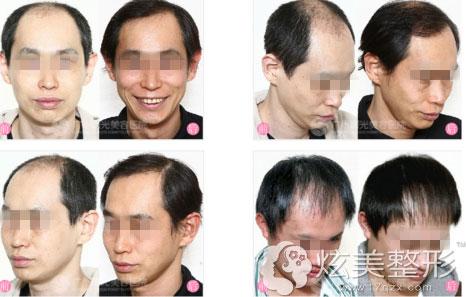 广州曙光头发种植案例