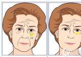 合肥韩美闫品行专家告诉你手术祛眼袋能维持几年