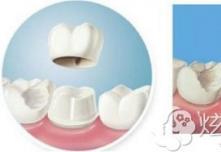 西安高一生教你修复牙齿选美容冠和烤瓷牙哪个好