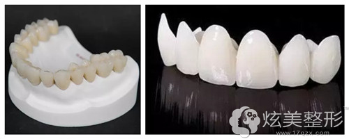 南通牙博士引进的德国二氧化锆全瓷牙
