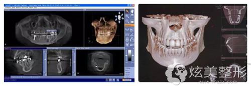 全瓷牙修复采用数字化3D技术
