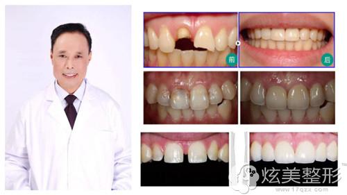 擅长全瓷牙修复的南通牙博士院长刘建阳