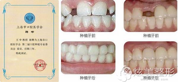 种植牙专家推荐王申案例