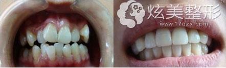 隐形牙齿矫正案例