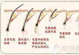 广西南宁梦想黄桂云专家揭秘激光脱毛会造成色素沉淀吗