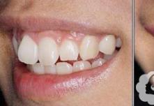 2018武汉冠美口腔做牙齿矫正大概多少钱?都有哪些方法