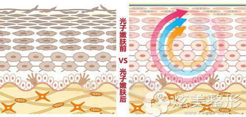 光子嫩肤术前术后对比