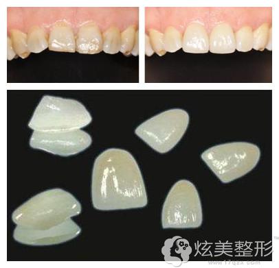 冠美口腔医院复合树脂牙齿贴面案例
