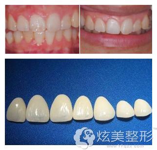 武汉冠美聚合瓷牙齿贴面案例