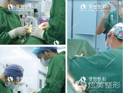 明皓院长为我做曼托假体隆胸手术