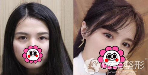 荆州中爱全切双眼皮精品案例