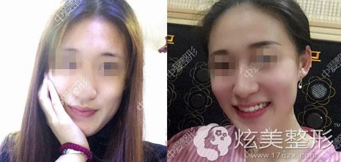 荆州中爱鼻综合案例