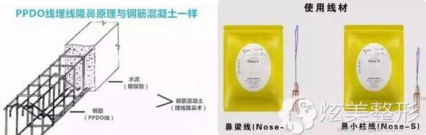 什么是线雕隆鼻及所使用的线材展示