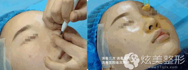 线雕隆鼻术前划线和消毒