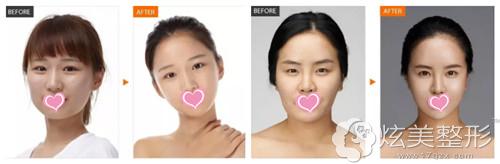 柳州丽人面部轮廓整形案例