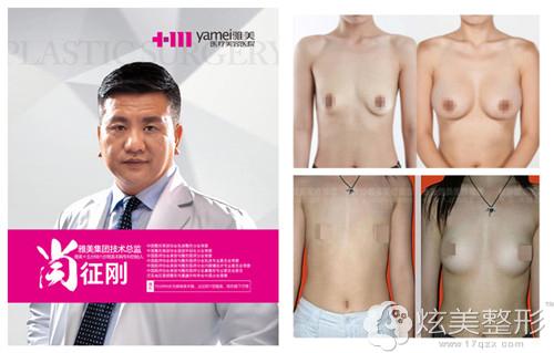 长沙雅美隆胸专家肖征刚