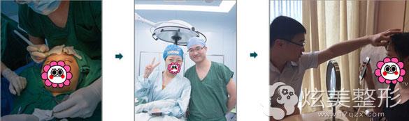 广州美莱双眼皮案例手术过程