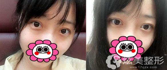 广州美莱双眼皮案例术后3天