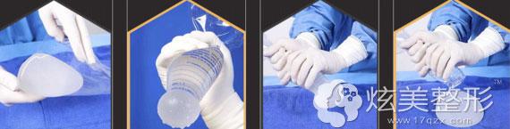 非接触假体植入技术的过程