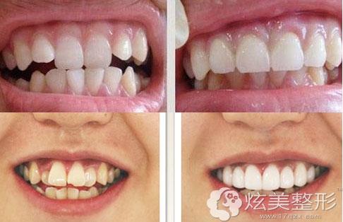 宁波牙博士隐形牙齿矫正案例