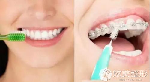 隐适美牙套便于口腔清洁