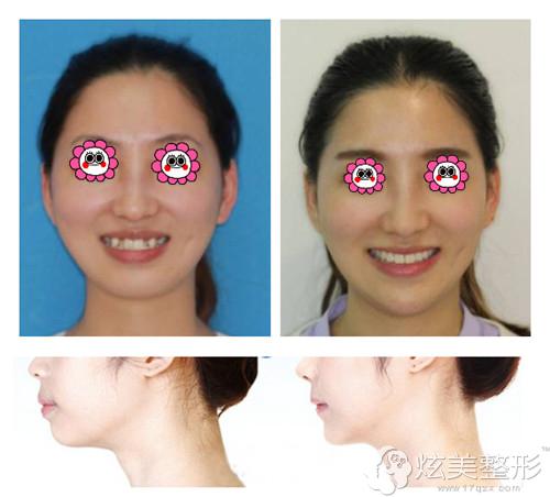 上海首尔丽格牙齿矫正案例