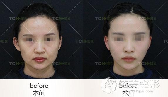 杭州时光面部线雕案例